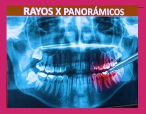 rayos X de nuestra dentadura