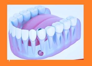 problemas en la dentadura